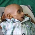 Yémen : Guerre, famine et chaos, pourquoi ce silence assourdissant de la part de nos médias ?